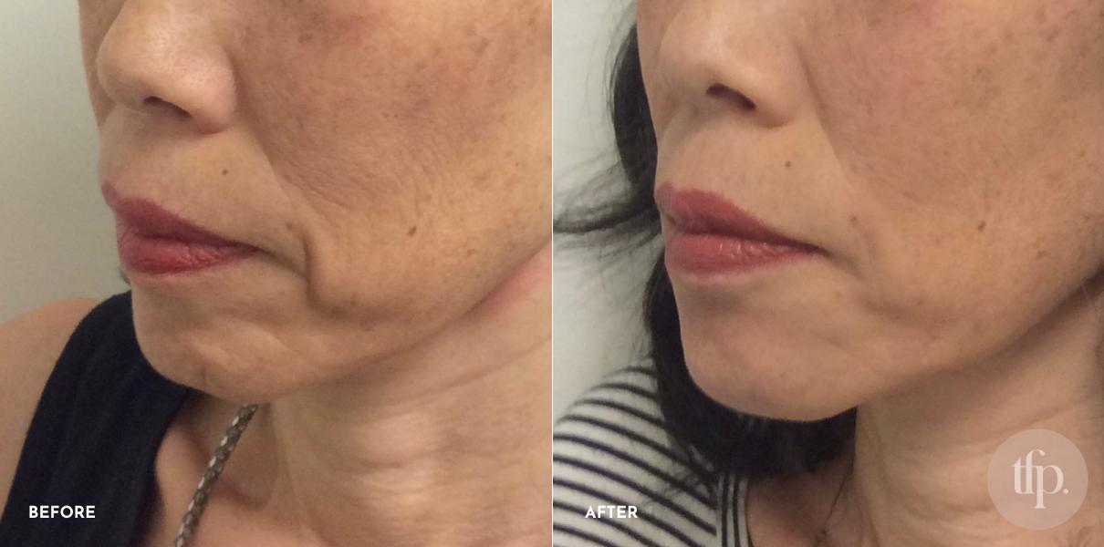 Anti Wrinkle Injections - Botox - Gold Coast